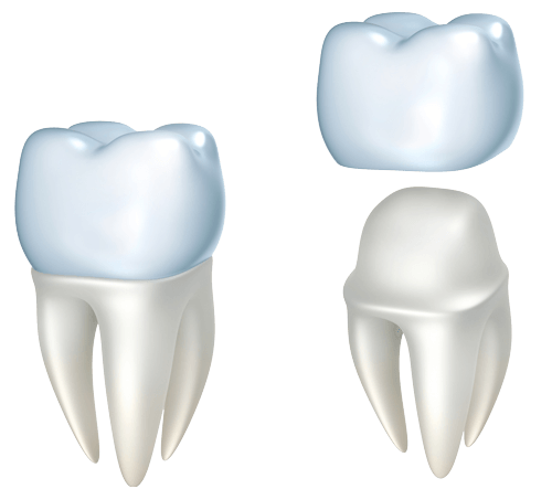 illustration of dental crown