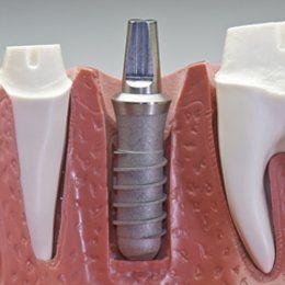 Implant retained bridgework