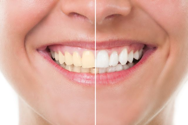 Teeth Whitening in Katy, TX