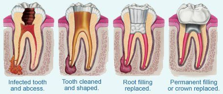 root canal therapy chart