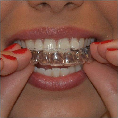 teeth whitening retainer
