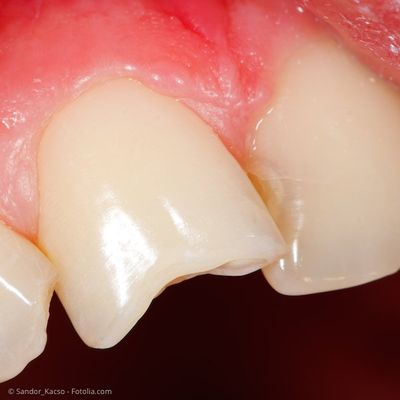 Ecke vom zahn abgebrochen