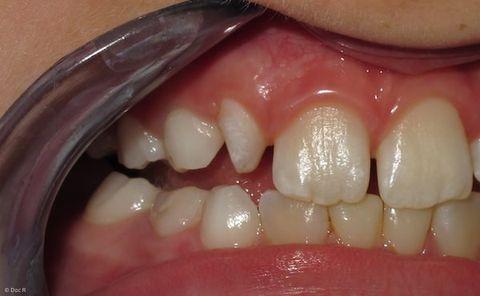 Vom abgebrochen ecke zahn Zahn abgebrochen:
