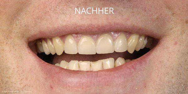 Schneidezähne nach der Behandlung mit Veneers