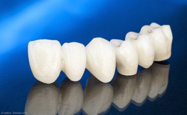 Zahnbrücke aus reiner Keramik: Ästhetisch und gut körperverträglich