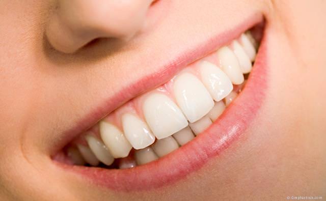 Perfekt schöne Zähne mit Veneers