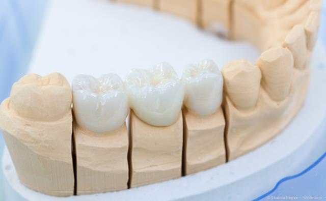 Ästhetische Zahnbrücke aus reiner Keramik