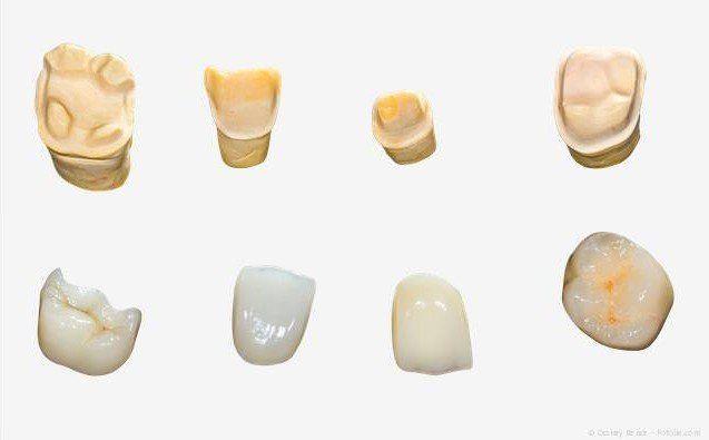 Kronen und Teilkronen aus Keramik