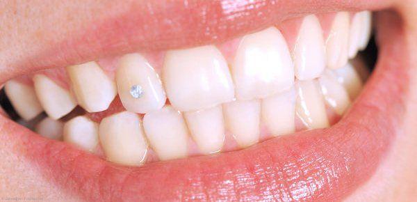 Zahnschmuck: Das gewisse Extra