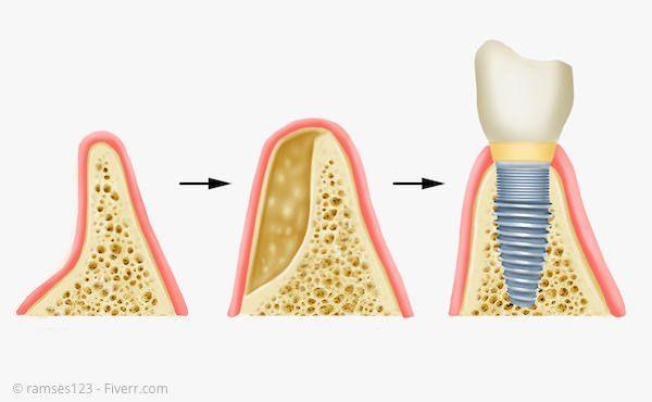 Verbreiterung des Kieferkammes für ein Implantat