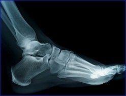 analisi posturale piede