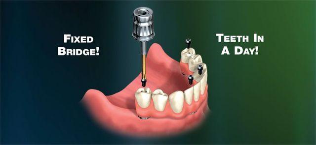 Teeth in a day, Saugus, MA