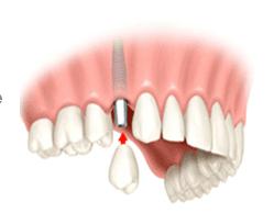 Single Tooth Implant Saugus, MA