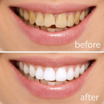 Porcelain Veneers - Luray, VA Services