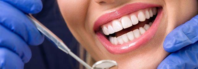 5 Dicas De Para Manter Seus Dentes Brancos Por Mais Tempo