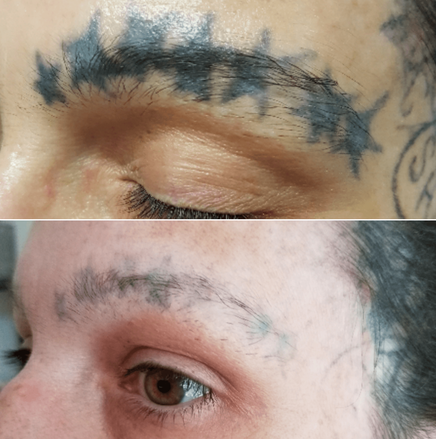 Before After Tattoo Removal