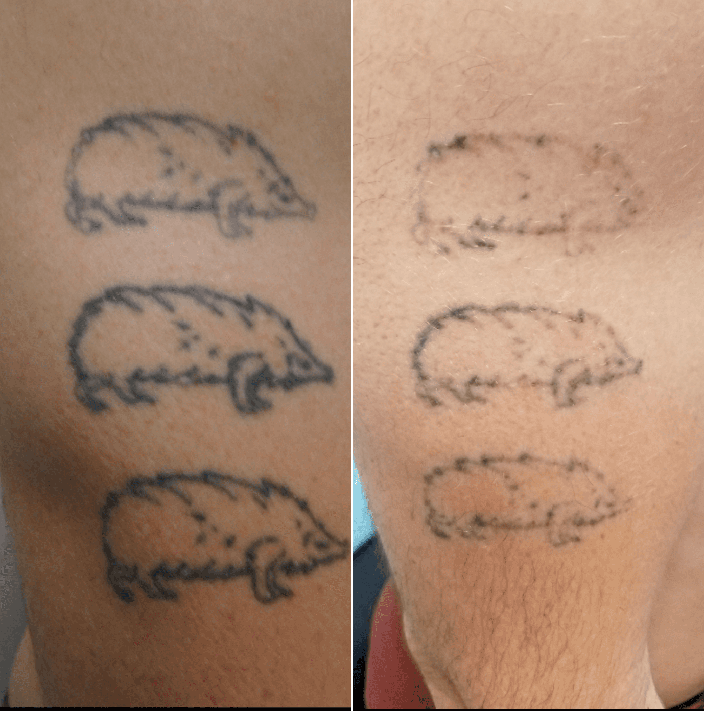 Before after tattoo removal for Tattoo removal healing