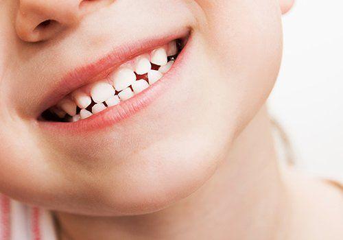 Strumentazione del dentista accanto a una bocca  sorridendo