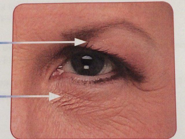 eyelid surgery Cleveland, OH