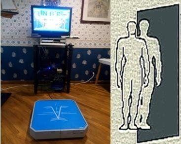 stabilometria computerizzata