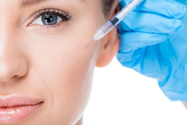 PDO Thread Lifting - Non-surgical Face Lift