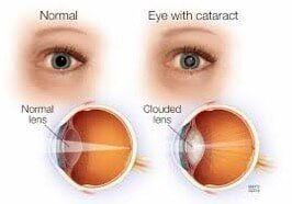 Cataract Surgery Middletown Ri Eye Care For Ri