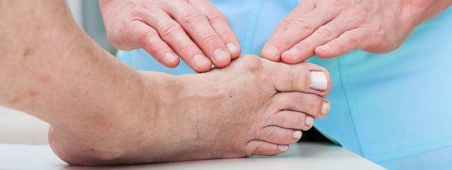 common toe deformities