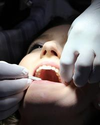 Providing cosmetic dentistry for a patient in Lincoln, NE