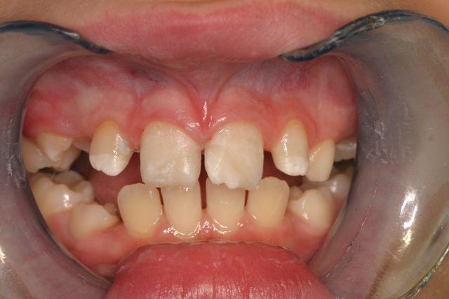 fotografia denti dopo trattamento