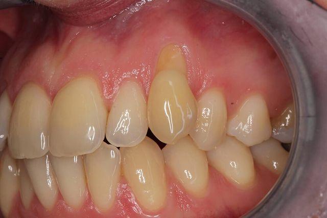 particolare denti