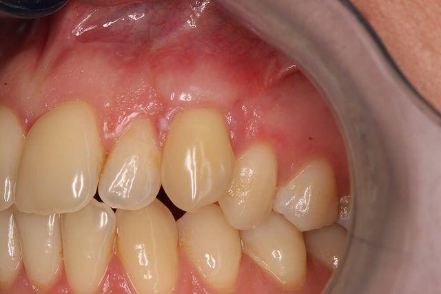 particolare denti e gengive