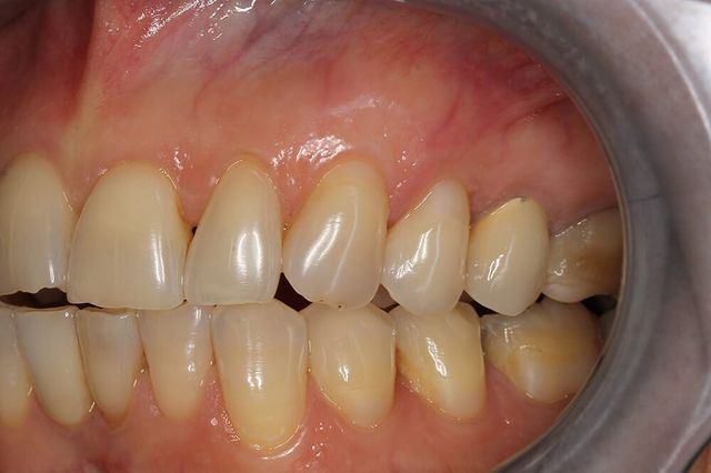 foto ravvicinata di dentatura