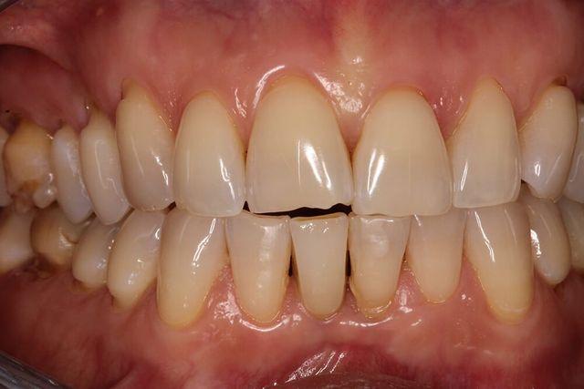 foto di denti