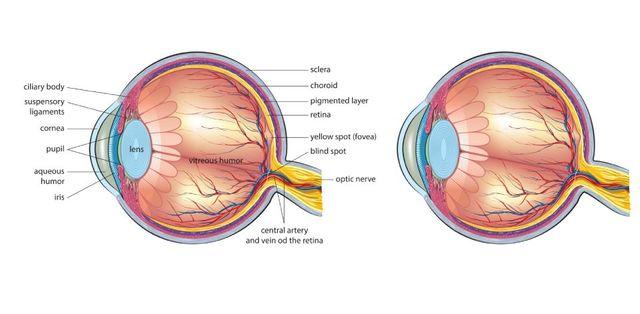 c4a77c145 Aumento pressione dell'occhio| Catania | Fazio Dr. Paolo Oculista