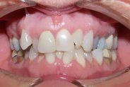 Cosmetic Dentist Cascade & Grand Rapids, MI