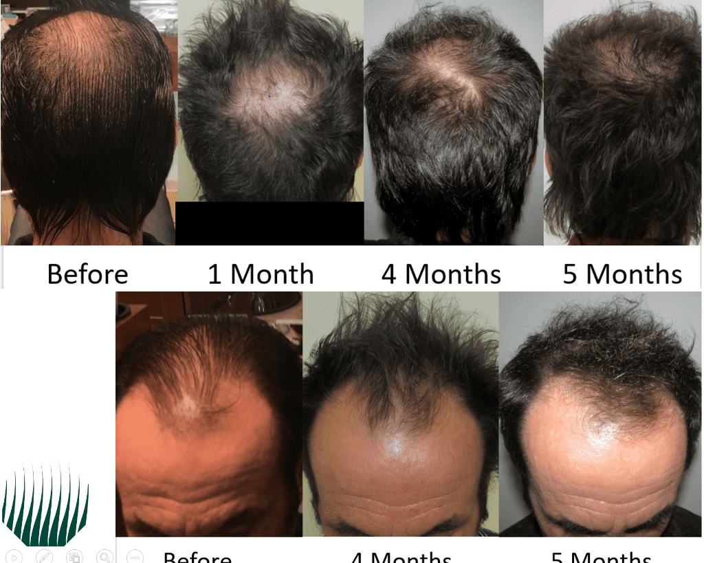 hair growth images over time customer reviews