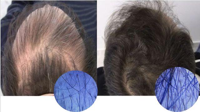 hair regrowth customer reviews