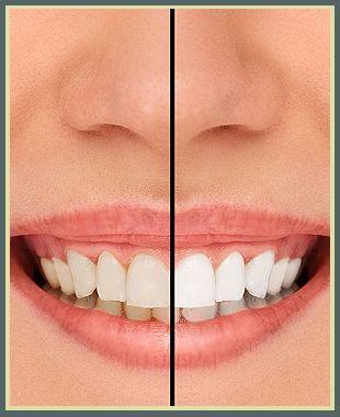 Teeth Whitening Schenectady, NY