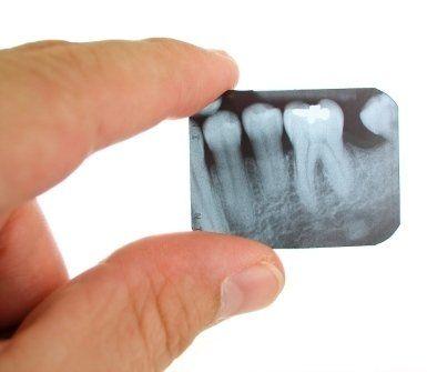 prevenzione orale, trattamento odontoiatrico