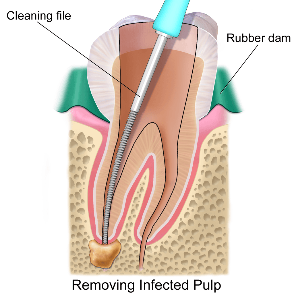 Illustration of root canal