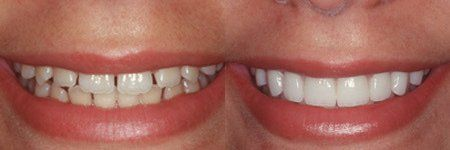 before and after photo of cosmetic dentistry