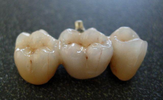 three unit fixed dental bridge