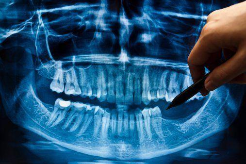 vista dell'equipaggiamento dentistico visto da vicino