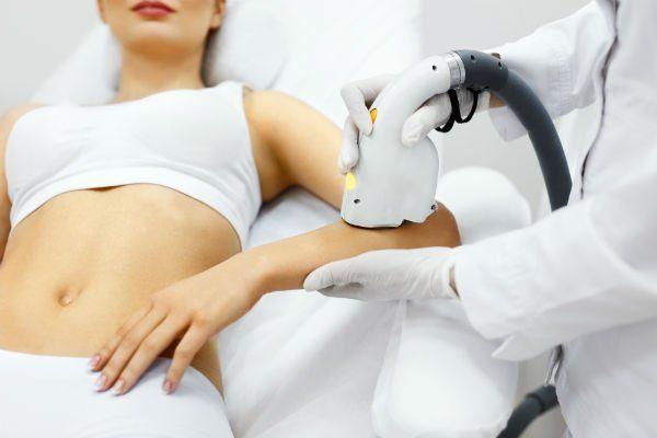 una donna che riceve epilazione laser su un braccio