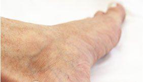 podologia geriatrica, cura piedi di anziani, cura piede diabetico