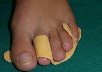 ortoplasia, ortesi in silicone, recupero deformazioni dita