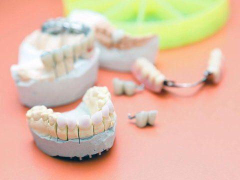 calco impianto dentale