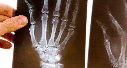 radiografia mano