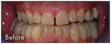 Dental Crowns Cocoa, FL