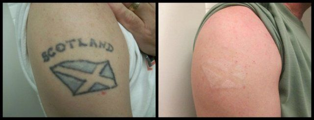 Rethink The Ink Tattoo Removal Las Vegas Your Vegas Tattoo Removal